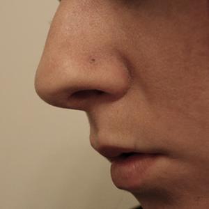 Bioplast nosebone 18g  Clear -- Photo # 51970