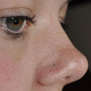 Bioplast nosebone 18g  Clear